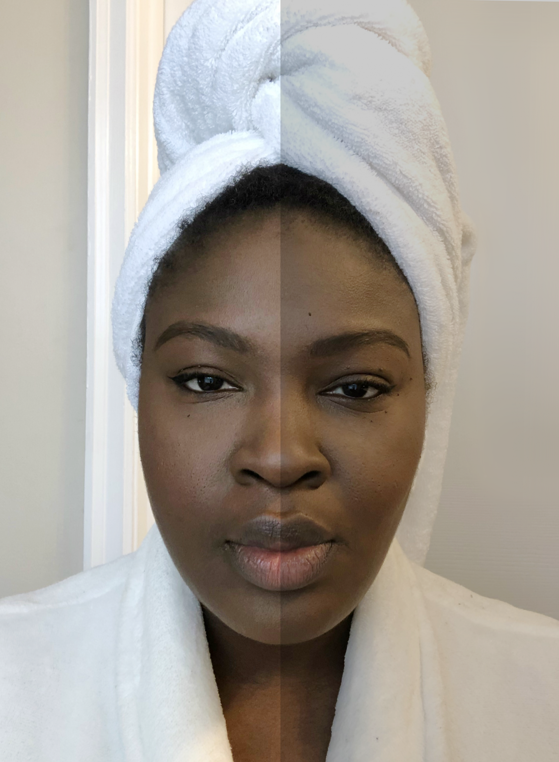 5 reason you still have hyperpigmentation from supplechic a fashion and life style blog in baltimore